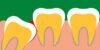 Disodontiasi: cos'è, sintomi, cause e cura