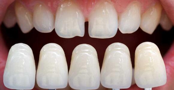 Faccette dentali- tutto quello che bisogna sapere