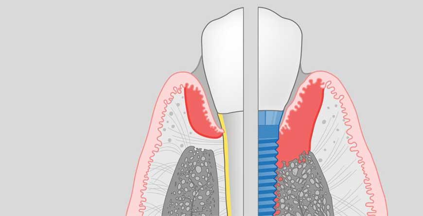 peri-implantite-come-puo-evitare