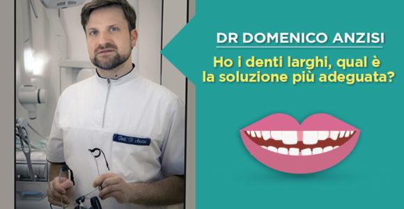 dr-domenico-anzisi-denti-larghi-o-diastema