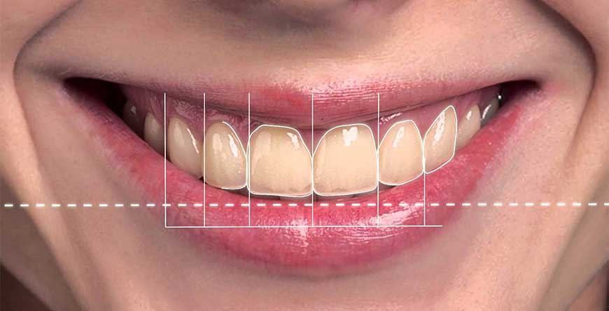 estetica-dentale-simmetria-del-sorriso