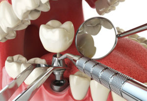 a-cosa-servono-gli-impianti-dentali