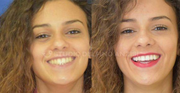 caso-clinico-sbiancamento-dentale