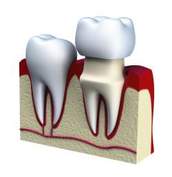 corona-dentale