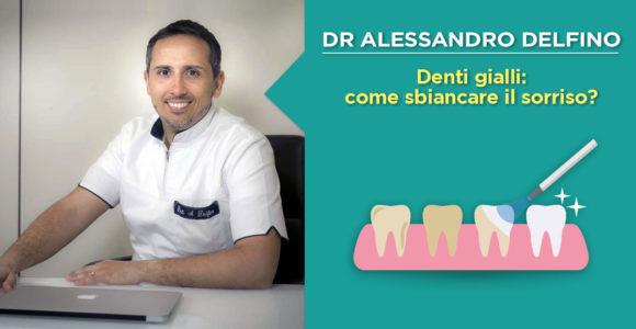 dr-alessandro-delfino-denti-gialli-rimedi-del-dentista