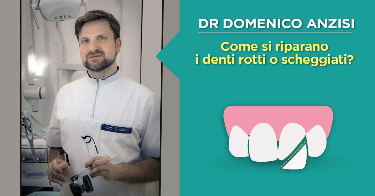 dr-domenico-anzisi-dente-rotto-scheggiato