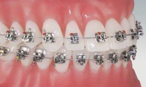 denti-storti-apparecchio-dentale-fisso