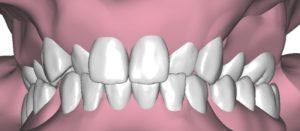 Denti storti immagine descrittiva