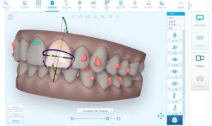 invisalign-ortodonzia-invisibile-napoli-22-300x179