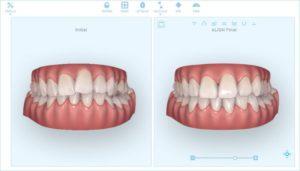 Denti storti e nuove soluzioni per raddrizzarli