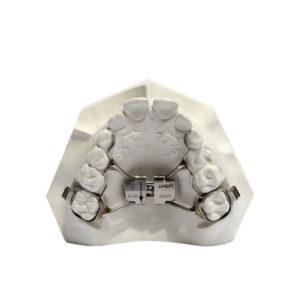 denti-accavallati-espansore-erp