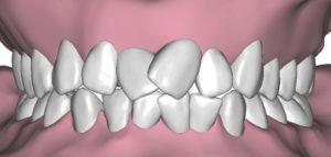denti accavallati