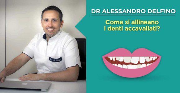 dr-alessandro-delfino-come-allineare-i-denti-accavallati
