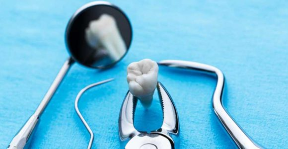 estrazione-dentale-quando-necessaria
