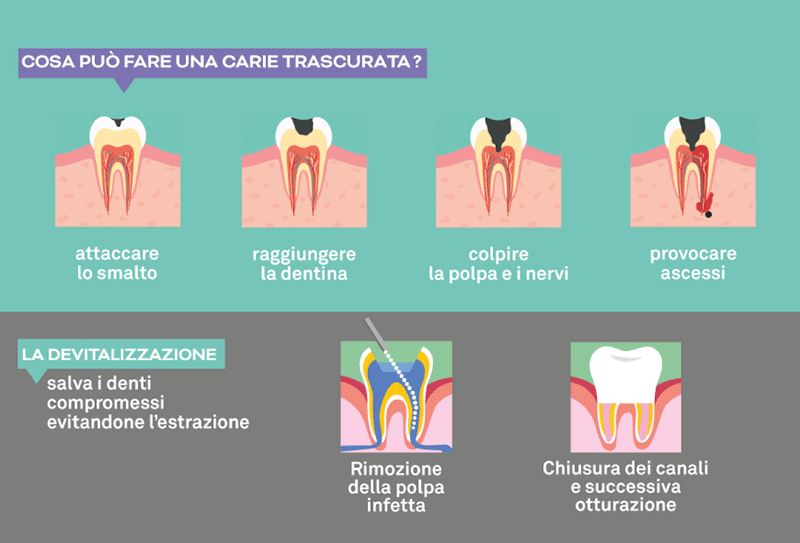 Endodonzia a Napoli