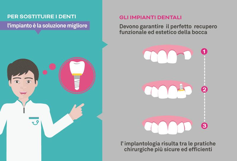 Implantologia a Napoli
