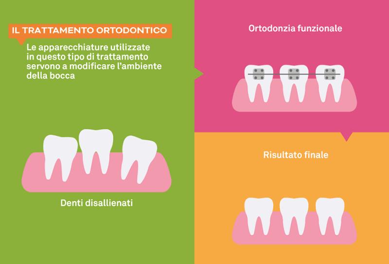 Ortodonzia a Napoli