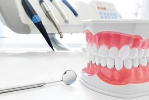Protesi dentali a Napoli
