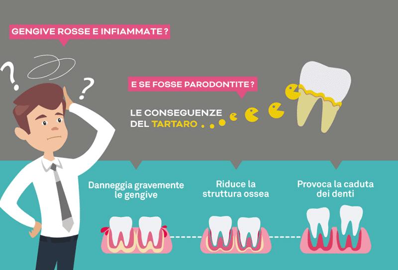 Curare la parodontite a Napoli