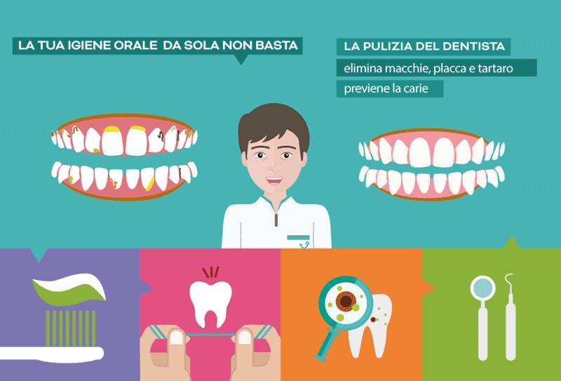 Pulizia dei denti a Napoli
