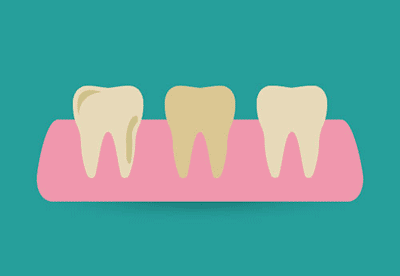 Denti Gialli - Sbiancamento dei denti