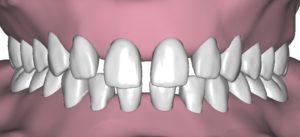Distanziamento dei denti