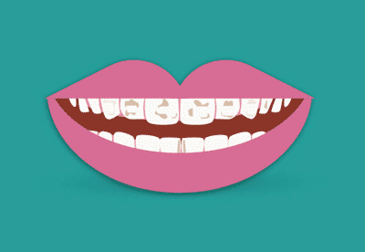 Macchie scure sui denti
