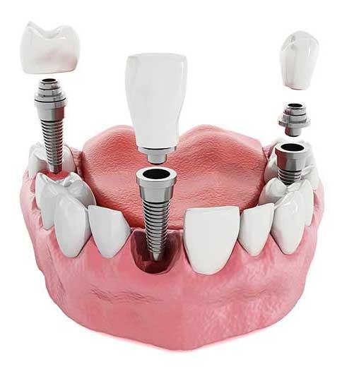 elementi impianto dentale Napoli