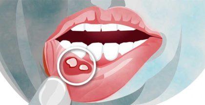 Afte e piccole lesioni della bocca