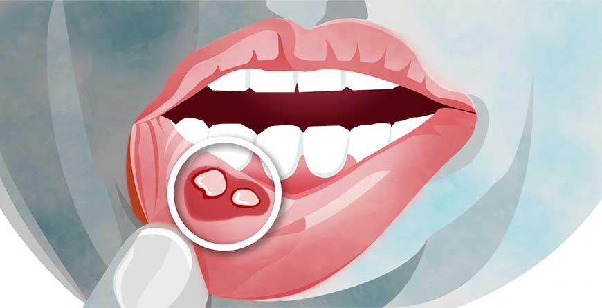 afte-piccole-lesioni-della-bocca
