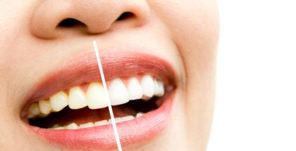 Macchie sui denti: come riconoscerle