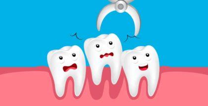 Estrazione dentale: prepararsi all'intervento
