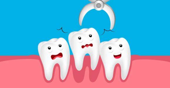 estrazione-dentale-napoli