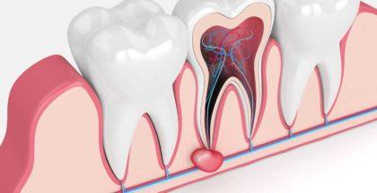 Cos'è una cisti dentale e come curarla