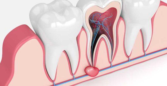 cisti-dentale-napoli