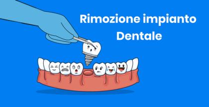 Rimozione dell'impianto dentale