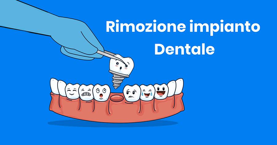 estrazione-impianto-dentale-studio-dentistico-delfino-anzisi-napoli