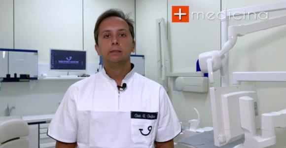 faccette dentali-dr-roberto-delfino