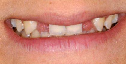 Agenesie dentali, cosa sono e quali trattamenti le risolvono