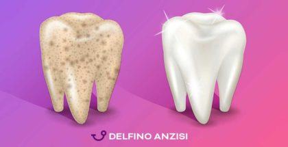 I denti ritornano bianchi solo dal dentista