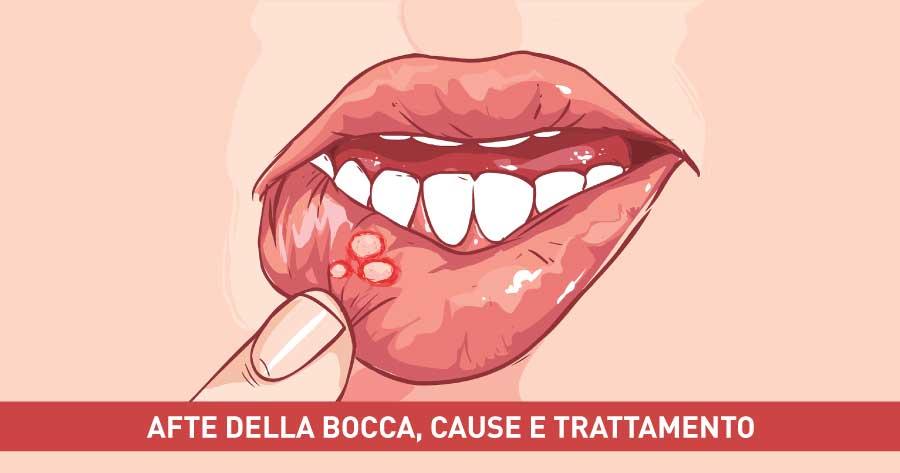 Afte-della-bocca-cause-e-trattamento-dentista-napoli