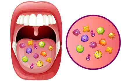 diabete-e-parodontite-il-microbioma-orale